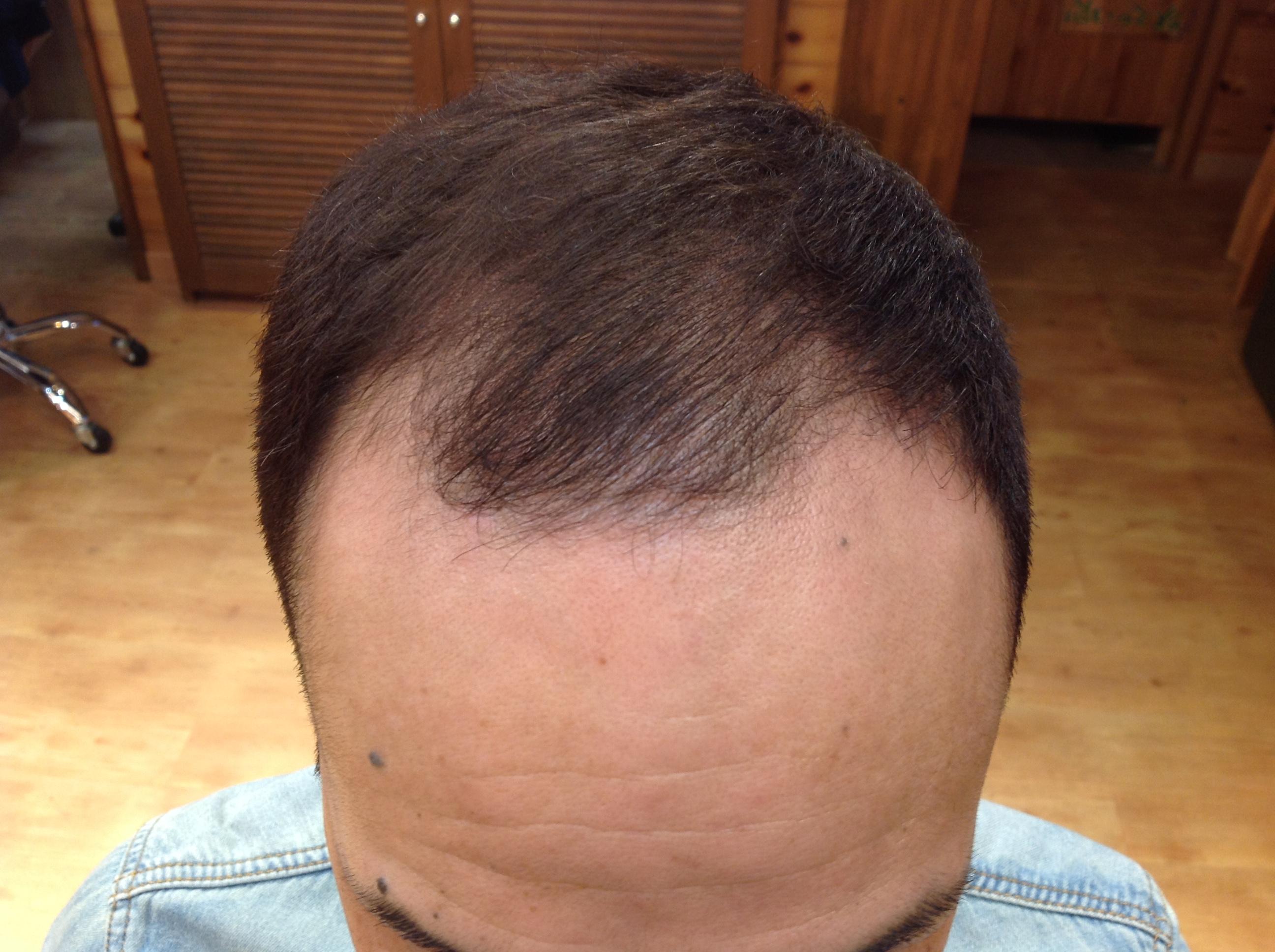育毛 発毛 AGA 男性型脱毛症 日立 日立市 美容室 美容院 ヘアサロン maru. マル